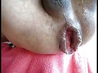 Male extrem asshole - monster anal gape