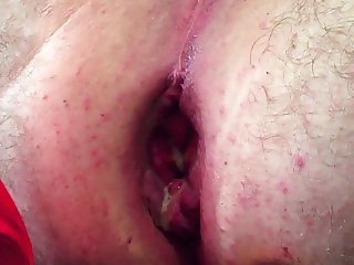 Close up anal insertion Favourite toys!. Huge Insertion